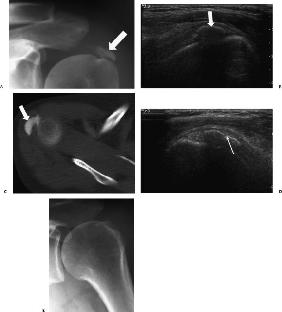 fluoro guided shoulder injection cpt code